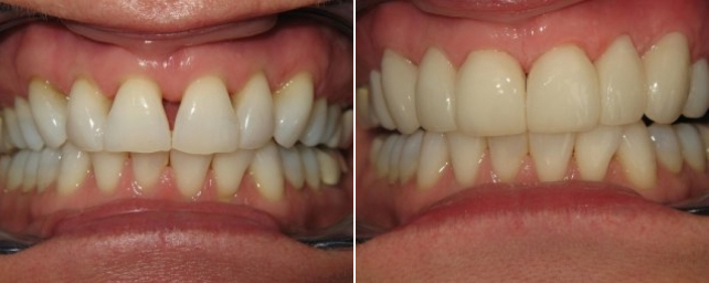 This patient wanted a pretty smile. She did not like the spaces between her teeth. We placed 10 porcelain veneers to whiten and even out her smile.