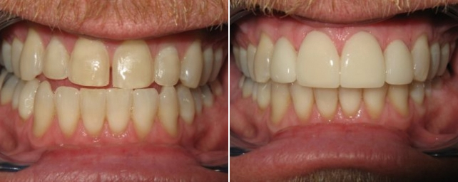 This patient wanted whiter teeth and to close the space between his front teeth. Dr. Alouf improved his smile with four porcelain veneers.